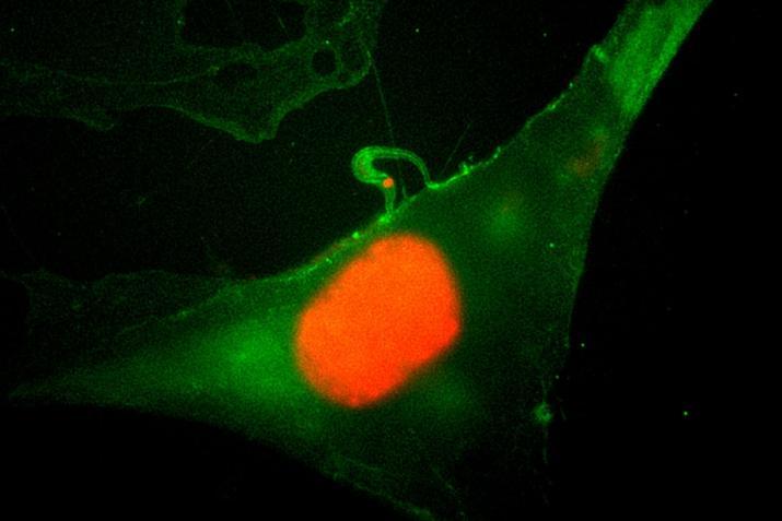 Trypanosoma cruzi Chagas, 1909 : attachement et invasion d'une cellule humaine par un trypomastigote © MNHN - Philippe Grellier
