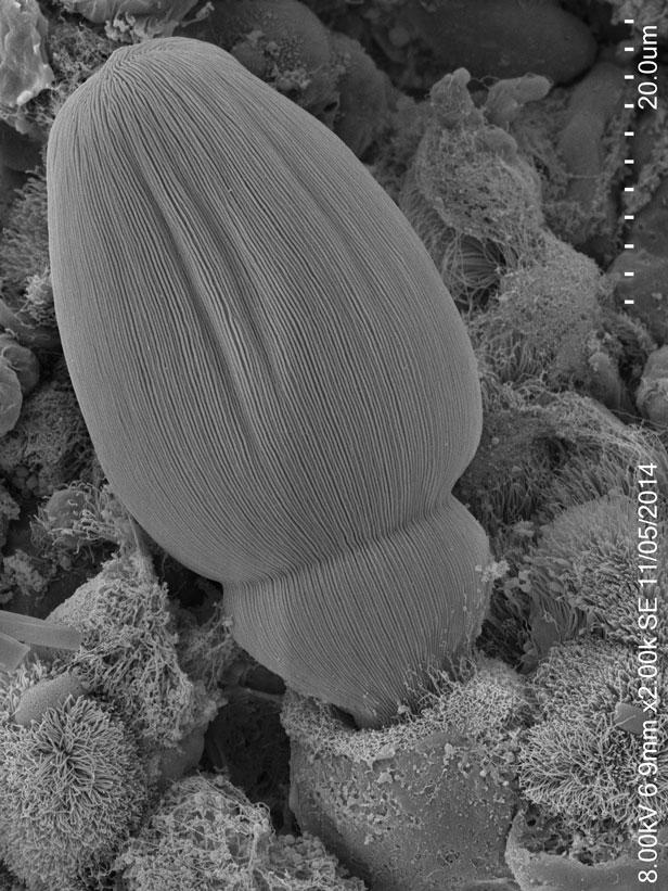 parasite intestinal du criquet pèlerin Schistocerca gregaria © MNHN Lisy Raveendran et Isabelle Florent , MCAM, 2014 © MNHN Lisy Raveendran et Isabelle Florent , MCAM, 2014